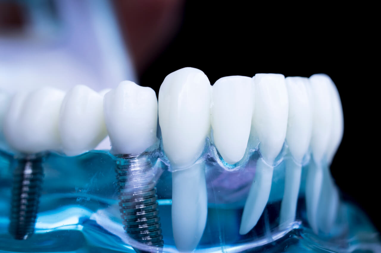 3d printed dental implants