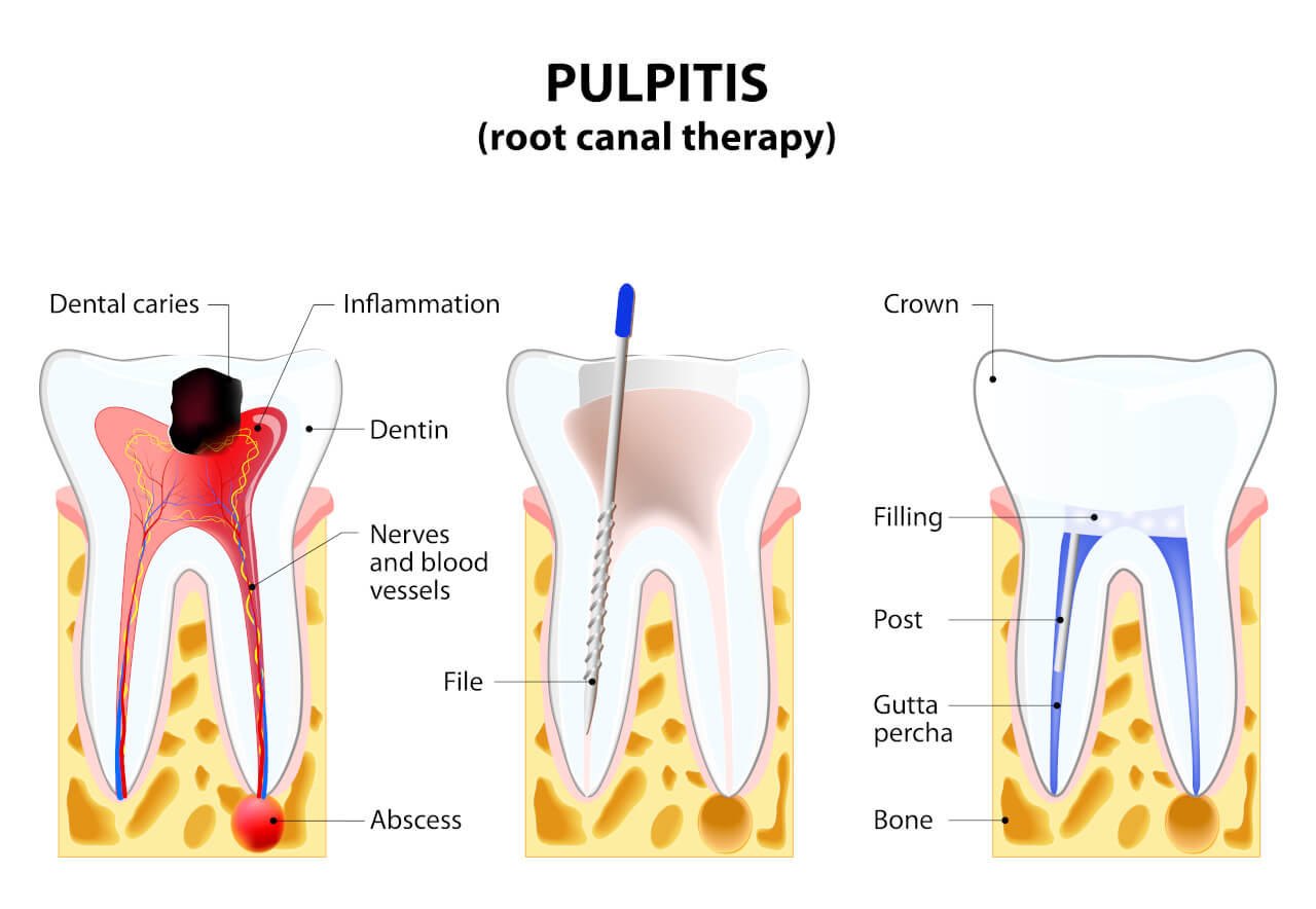 pulpitis treatment