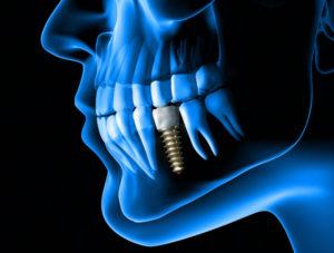 3d printed dental implants