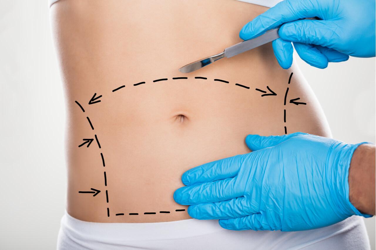tummy tuck belly button scar