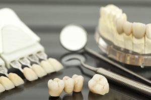 dental lab supplier