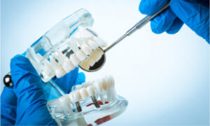 sample tooth model with dental implants