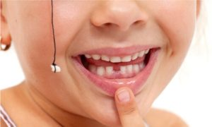 How to pull a tooth with no pain? Will a string do the honor?